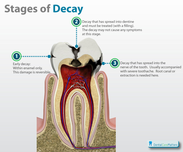 Tooth-Decay
