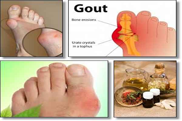 Natural Foods To Cure Gout